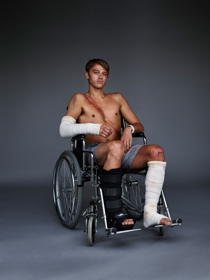 injured man on wheel chair