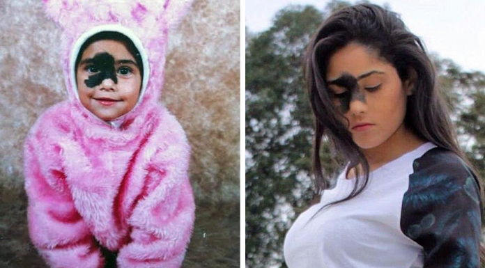 Girl Who Was Told That Her Rare Birthmark Looks Ugly Chose Not To Remove It, And Here's Why