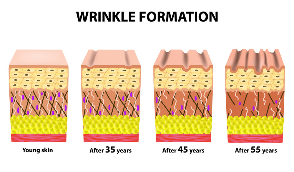 stages-of-wrinkles-at-different-ages-anatomical-vector